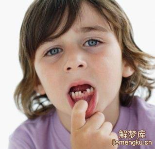 已婚女人梦见掉牙齿